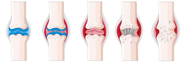 Natural treatment of arthritis
